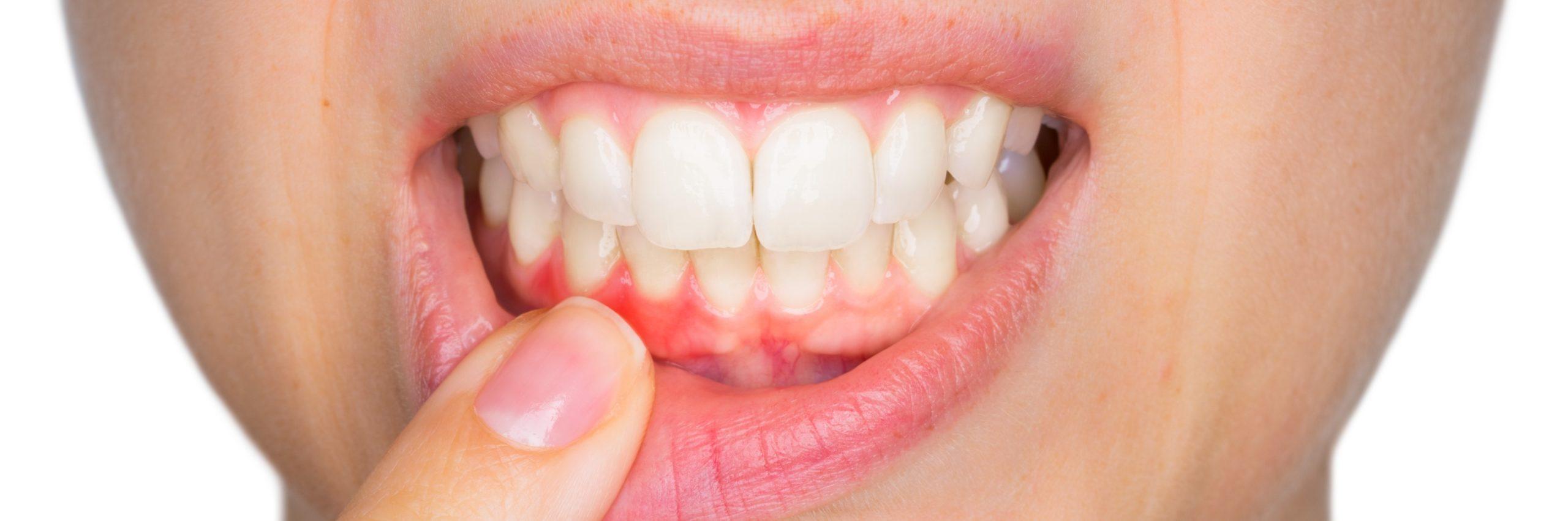 Vous souffrez de problèmes de bouche ?